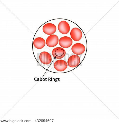 Cabot Rings. Anemia Of The Blood. Red Cells Are Erythrocytes In The Blood. Vector Illustration On Is