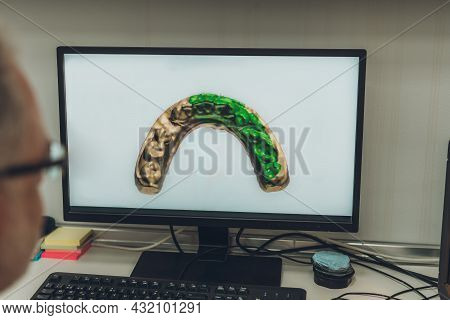 Professional Looking At A Computer Screen With A Scanned Image Of A Dental Mould In A Laboratory
