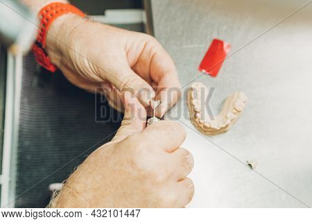 Aerial View Of A Hands Adjusting A Dental Mould Using An Electric Micromotor In A Dental Laboratory