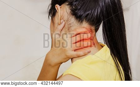 Back View Woman Pain In The Back Of The Neck, Degeneration Of The Neck, Moving Over The Nerve. Or Sp