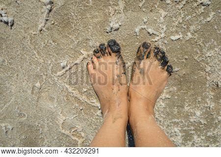 Therapeutic Mud. Mud Foot Treatment. Arthritis And Arthrosis Treatment.