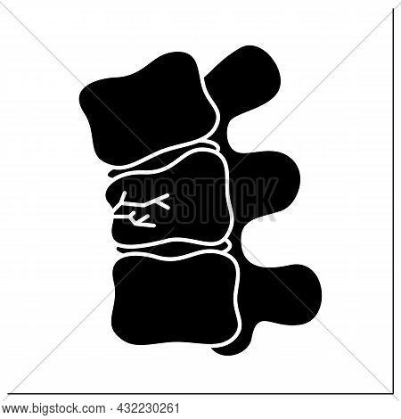 Compression Fracture Glyph Icon. Crush. Vertebral Collapsetrauma Or Vertebrae Weakness. Backache.hea
