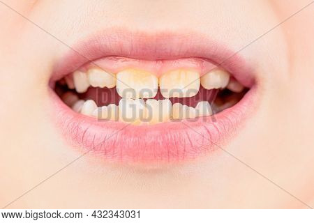 Close Up Of Unhealthy Baby Teeths. Kid Patient Open Mouth Showing Cavities Teeth Decay. Bad Teeth Ch