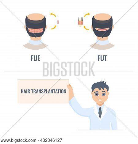 Hair Transplantation Infographics Of Male Alopecia Treatment