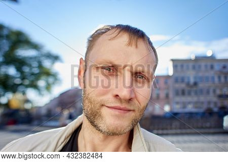 Serious Caucasian Male In His 40s With Early Receding Hairline.