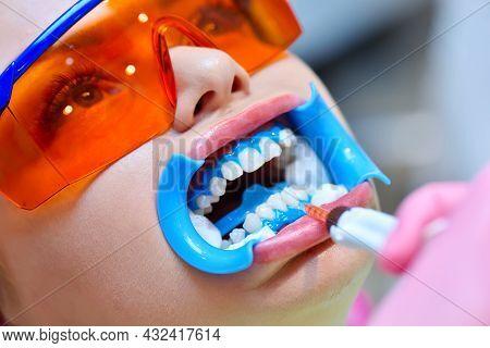 Dentist Applies Gel To Teeth Before Teeth Whitening Procedure. Beautiful Girl In Safety Glasses. Den