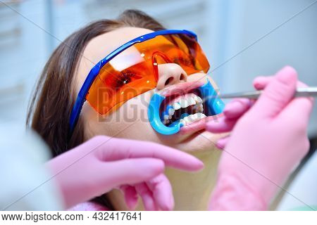 Woman Patient With Protective Glasses For Teeth Whitening Procedure. Dental And Teeth Whitening Conc