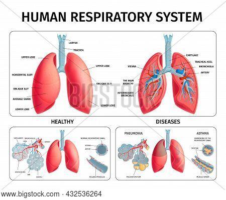 Human Respiratory System Anatomy Physiology Pathology Lung Diseases Pneumonia Asthma Medical Educati