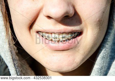 Design Of Braces On Teeth. Beautiful Caucasian Young Girl In Dental Braces Smiles In Sun. Teenage Co