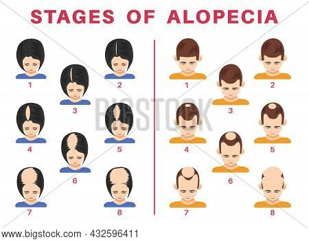 Stages Of Alopecia In Men And Women Vector Illustrations Set. Tops Of Male And Female Heads With Bal
