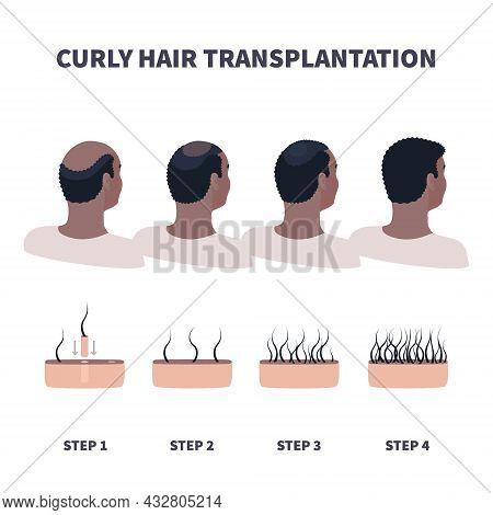 Afro Hair Transplantation Surgery In Men Infographics