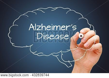 Hand Writing Alzheimers Disease On Drawn Human Brain With White Marker On Dark Blue Background.