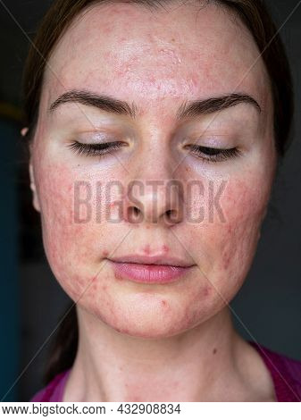 Close-up Of The Skin Of A Patient With Papulopustular Rosacea, Full Face