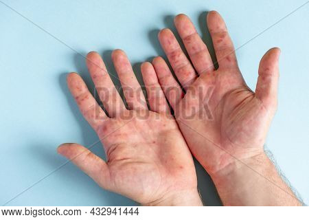 Painful Rash, Red Spots Blisters On The Hand. Close Up Allergy Rash, Human Hands With Dermatitis And