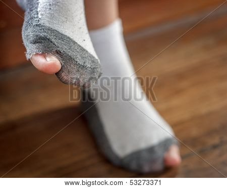 Worn Out Socks With A Hole And Toes.