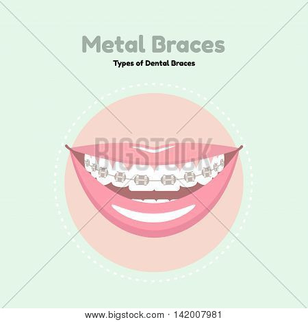 Metal Dental Braces. Types of Dental Braces. Vector flat illustration of smile with braces on the teeth.