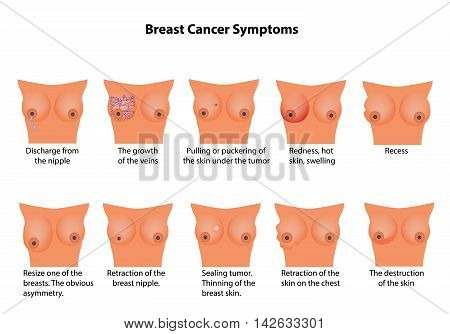 Symptoms of breast cancer. Infographics. Vector illustration on isolated background.