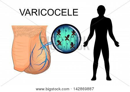 illustration of the male sexual organ suffering from varicocele. dilated veins. the inactive spermatozoa.
