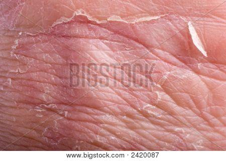 Eczema Closeup