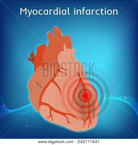 Myocardial Infarction. Heart Attack, Pain. Damaged Heart Muscle. Anatomy Flat Illustration. Red Imag