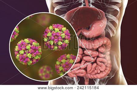 Norovirus In Human Intestine, Also Called Winter Vomiting Bug, Rna Virus From Caliciviridae Family,
