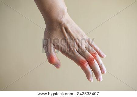 Close Up Hand Rheumatoid Arthritis Pateint.