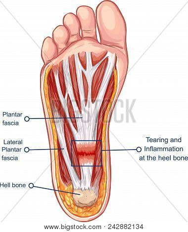 Vector  Illustration Of A Plantar Fasciitis Symptoms