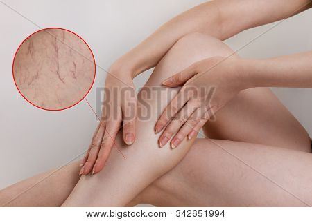 The Concept Of Varicose Disease And Cosmetology. The Woman Sits Cross-legged And Rubs Her Skin With
