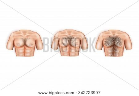 Illustration Of The Types Of Male Breast Hair.