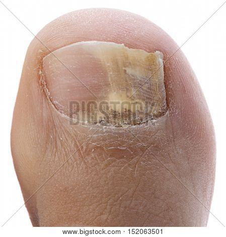 Toenail Fungus Isolated