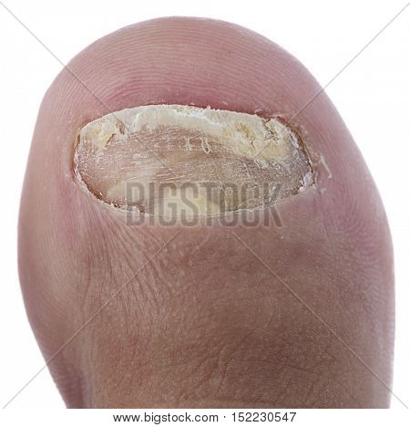 Ringworm of the Nail Isolated
