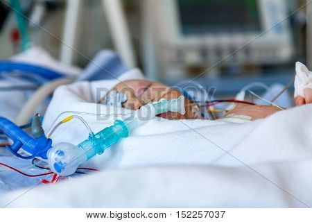 Infant, child in intensive care unit after heart surgery. Shallow depth of field with medical equipment and mother sitting beside the bed. Candid image.