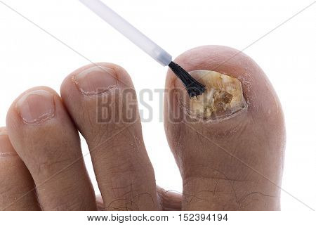 Applying polish on toenail suffering fungus infection isolated on white background.