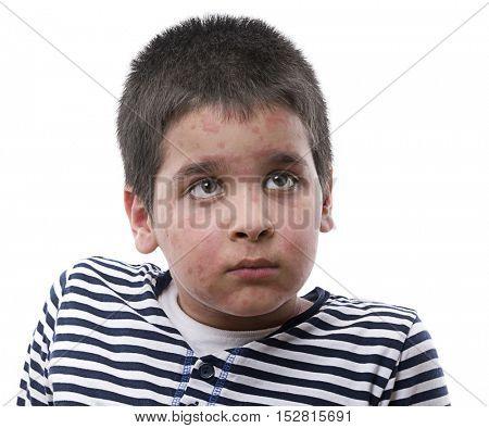 Urticaria on Face