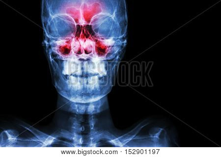 Sinusitis. film x-ray skull AP ( anterior - posterior ) show infection and inflammation at frontal sinus ethmoid sinus maxillary sinus and blank area at right side