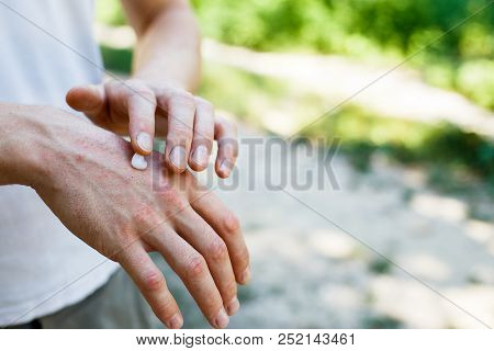 Applying An Cream Emollient To Dry Flaky Skin As In The Treatment Of Psoriasis, Eczema And Other Dry
