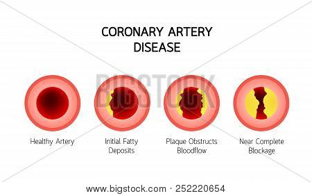 Coronary Artery Disease Infographic. Heart Awareness Concept. Atherosclerosis Stages In Artery Cause