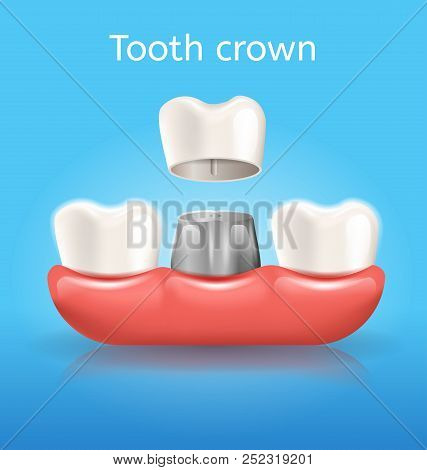 Tooth Crown Realistic Vector Medical Poster With Ceramic Crown Attaching To Metal Base Implanted In