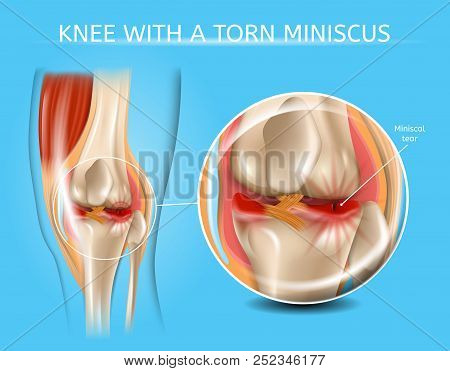 Knee With Torn Meniscus Realistic Vector Medical Scheme With Damaged Knee Joint And Magnified Painfu
