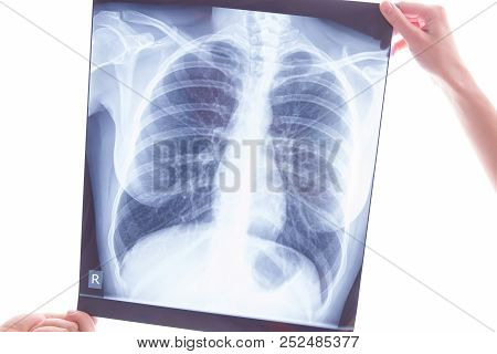 Oncological disease concept. Hands holding x-ray of lungs examining lung cancer poster