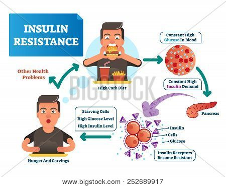 Insulin Resistance Vector Illustration. Labeled Scheme With All Cycle Of Process. High Glucose In Bl
