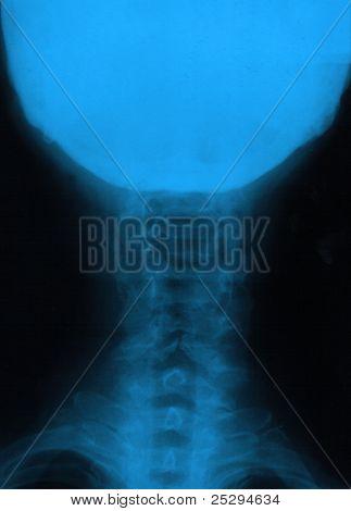 human neck