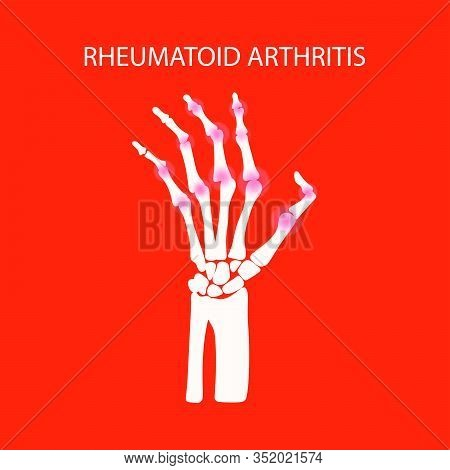 Arthritis Hand Rheumatoid Disease Chronic Illness Medicine Education Diagram Vector Scheme Human Han