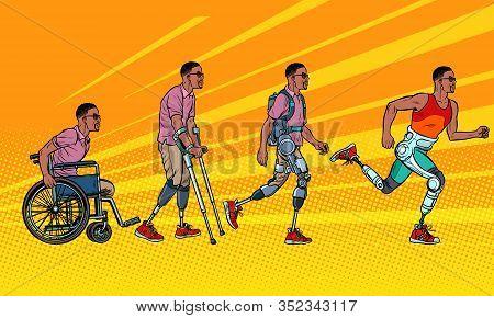 Evolution Of Rehabilitation. African Man Leg Prosthesis. Pop Art Retro Vector Illustration Vintage K