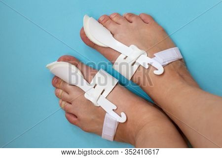 Bunion Corrector Of A Big Toe, Bunion Relief Protector, Nonsurgerocal Treatment Of A Thumb Deformaty