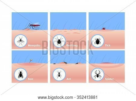 Insect Bites Flat Vector Illustrations Set. Mosquito Drinking Blood, Tick Getting Under Skin, Bee St