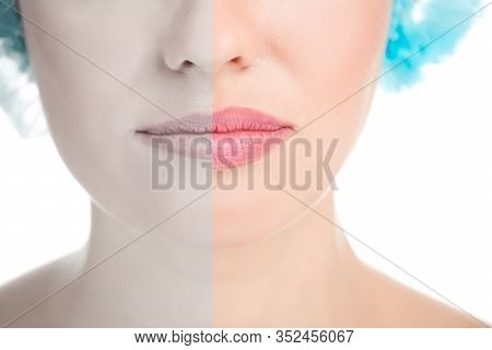 Before And After Lip Filler Injections. Lip Augmentation Procedure, Beautiful Perfect Lips. Sexy Mou