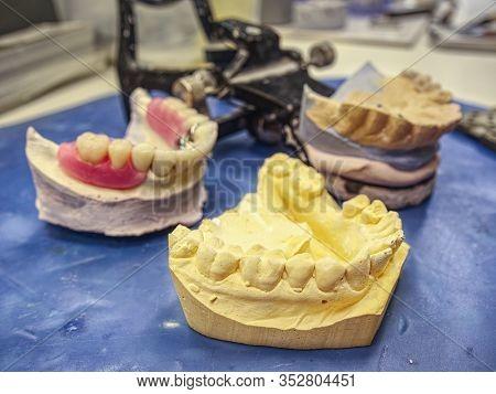 Ceramic Dental Implants On Gypsum Layout. Plaster Cast Stomatologic Human Jaws Prothetic Laboratory