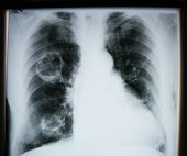 X-ray of human lungs. Pulmonary illness concept poster