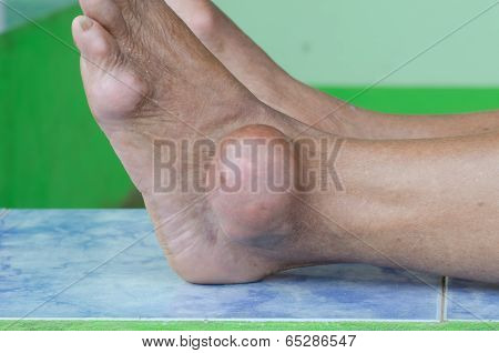 Foot Of Gout Patient